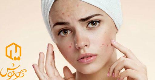 درمان دائمی جوش صورت